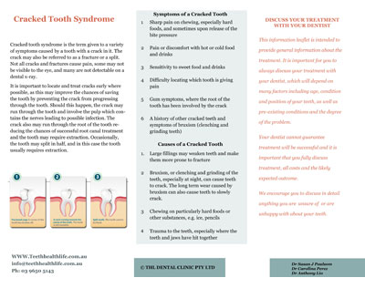 Cracked Teeth Syndrome